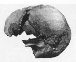 skull3.jpg (15666 bytes)